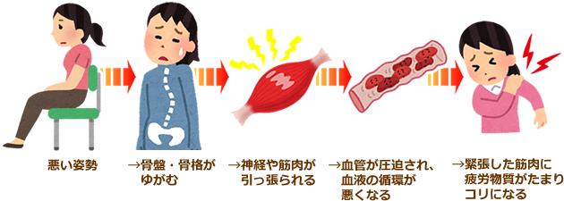 図:肩こり・頭痛は姿勢の悪さが原因