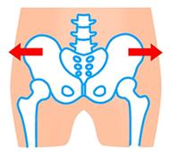 骨盤のイラスト:開きタイプ