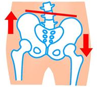 骨盤のイラスト:傾きタイプ