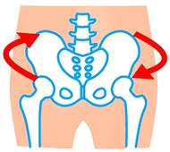 骨盤のイラスト:ねじれタイプ