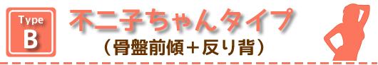 タイプB:不二子ちゃんタイプ(骨盤前傾+反り背)