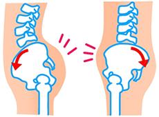 骨盤のイラスト:前屈・後屈タイプ