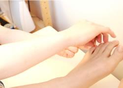 神戸市西区笑み整骨院の逆子のお灸施術写真